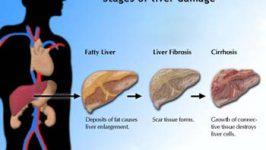 Regim alimentar Ciroza