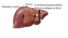 Regim alimentar in hepatita cronica