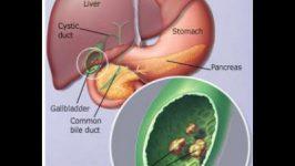 Dieta Tratament Litiaza Biliara