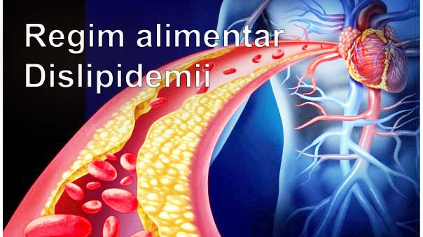 Regim alimentar Dislipidemii