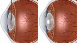 Dieta pentru cataracta