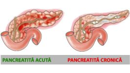 Regim alimentar al bolnavilor de pancreatita acuta