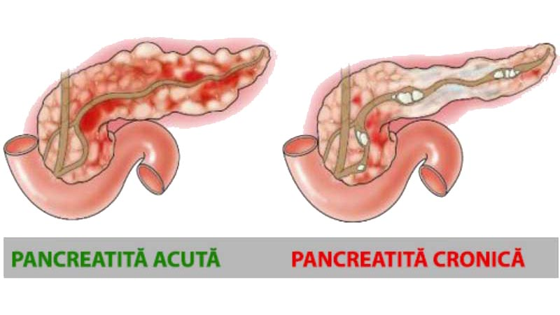 pancreatita-acuta